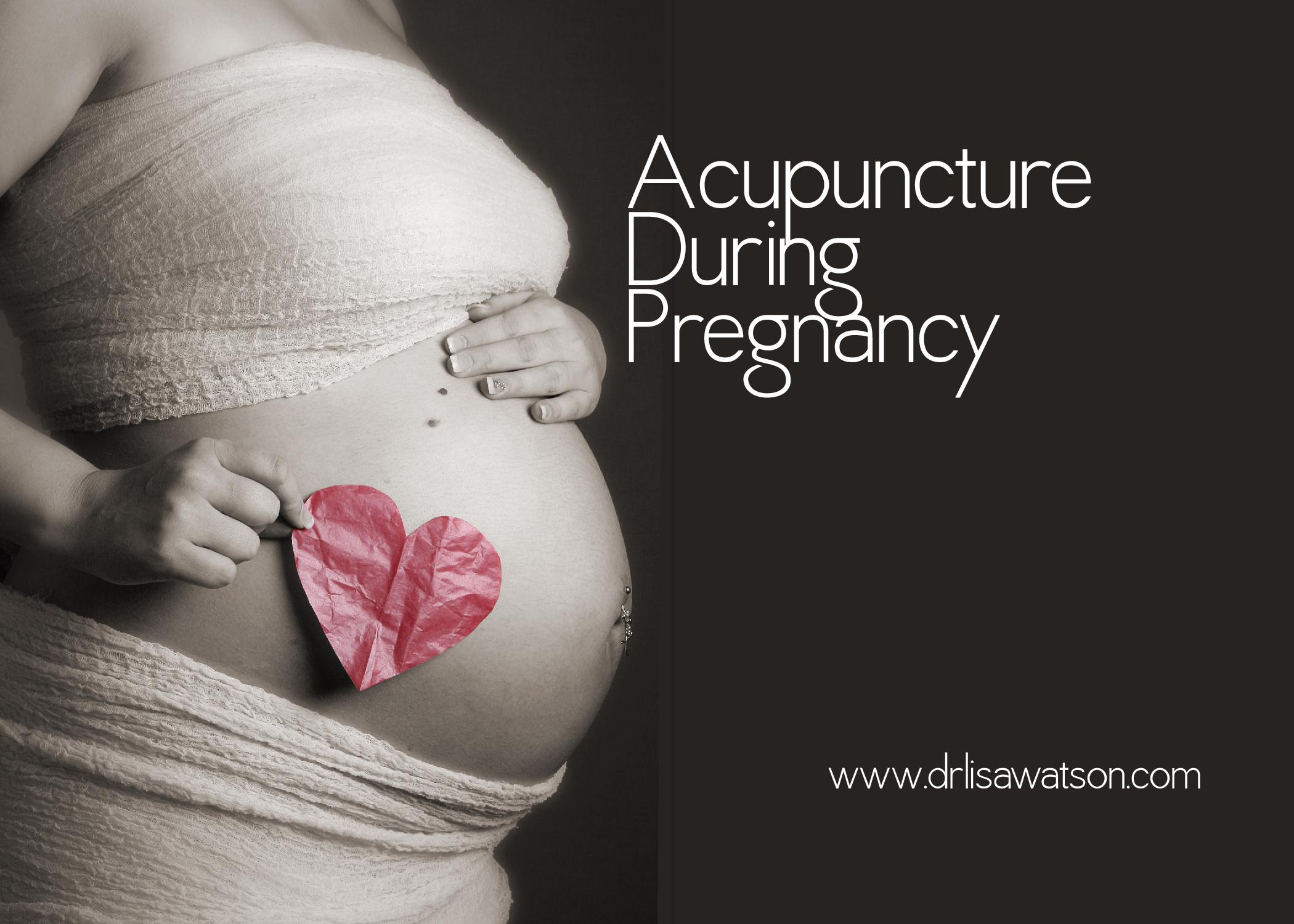 Acupuncture In Pregnancy  Dr Lisa Watson